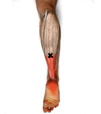 Schmerzen der Ferse und Achillessehne bei Polyneuropathie