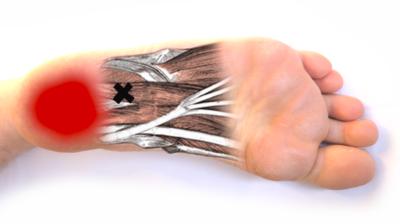 Fersenschmerzen bei Polyneuropathie
