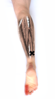 Schmerzen durch verkrampften Flexor Hallucis Longus bei Polyneuropathie
